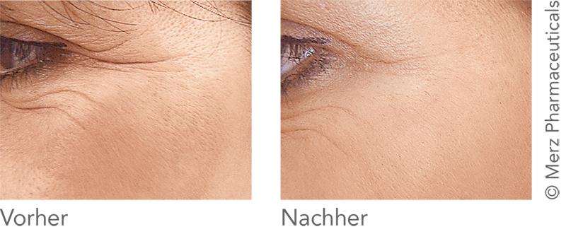 Belotero Kampagne: Krähenfüße: Vorher - Nachher (Merz Pharmaceuticals)