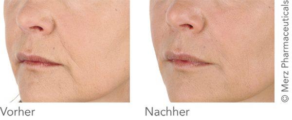 Belotero Kampagne: Nasolabial: Vorher - Nachher (Merz Pharmaceuticals)