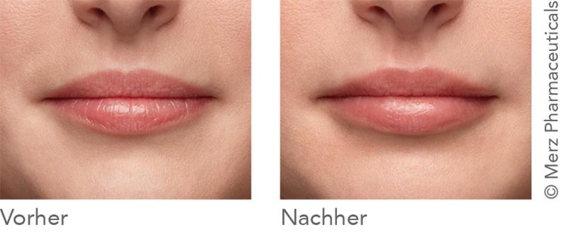 Belotero Lips Kampagne: Vorher - Nachher (Merz Pharmaceuticals)